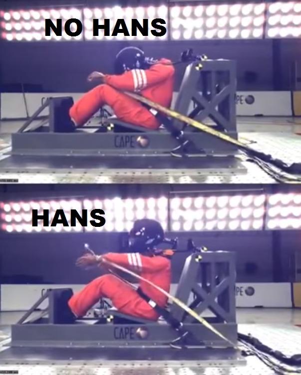 Funzionamento Hans